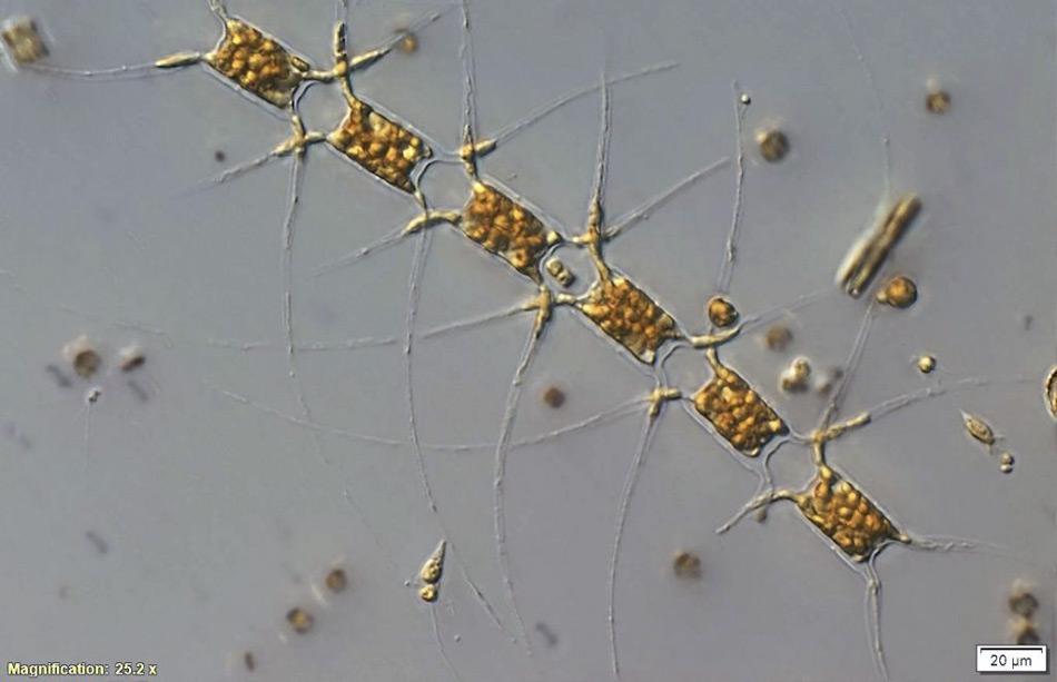 Einzellige marine Pflanzen, Phytoplankton, bilden die Basis des antarktischen Nahrungsnetzes. Sie ermöglichen die immense Vielfalt des Lebens in der Antarktis einschließlich des Krills, der Robben, Pinguine und Wale. Die Phytoplankton-Zellen wurden unter dem Mikroskop vergrößert, jede Kette ist ca. 200 μm (Mikrometer) lang, dies entspricht etwa 1/5 Millimeter - oder 1/5 eines Stecknadelkopfes. (Bild: Alyce Hancock)